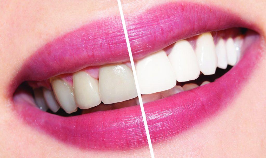 результат отбеливания зубов в тонус-студио
